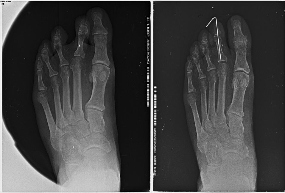 Comparativa de el pie en el preoperatorio y el postoperatorio