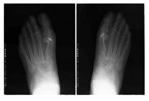 Fotos y RX tomadas después de la  intervención quirúrgica,  donde podemos apreciar una reducción del ángulo intermetatarsal.