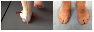 Fotos tomadas en la revisión anual en noviembre de 2013, donde se puede observar en la foto de la izquierda el aumento de la pronación de la articulación subatragalina  y en la foto derecha los buenos resultados de la intervención quirúrgica.