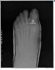 Radiografia post operatoria Mayral