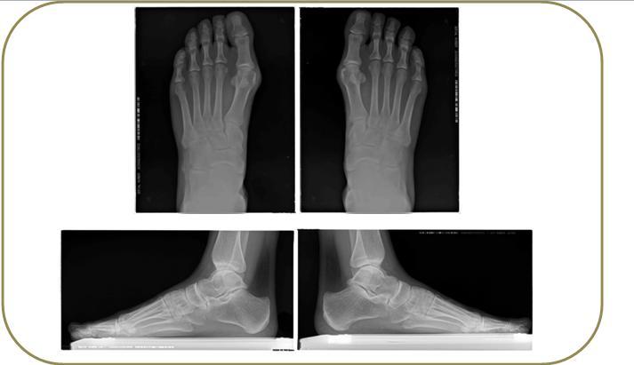 Radiología dorsoplanta