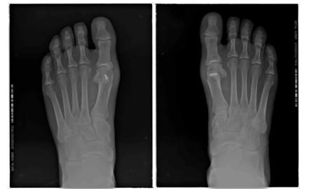 Radiología dorsoplantar