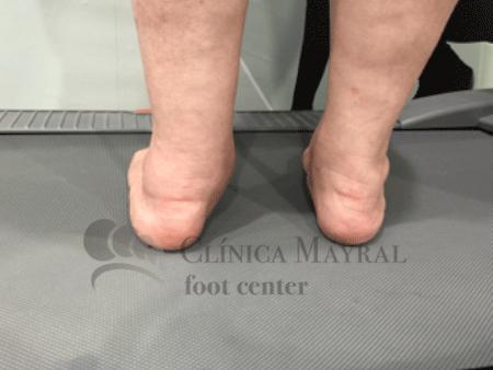 implante-endosenotarsico-mayral